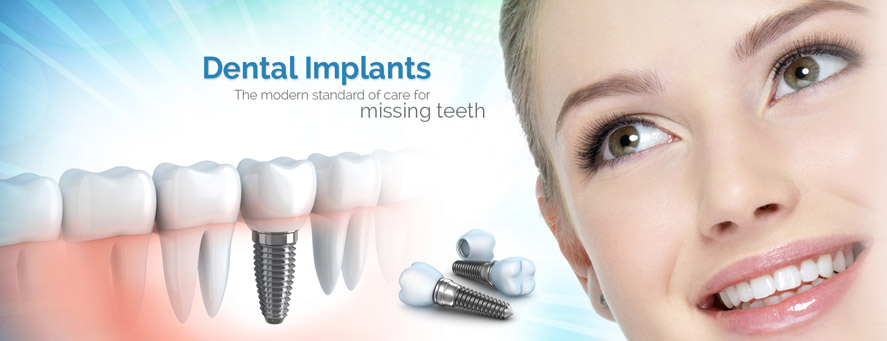 dental implants angamaly