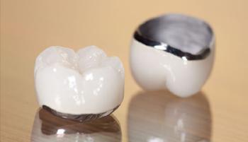 Ceramic-fused-to-metal crowns